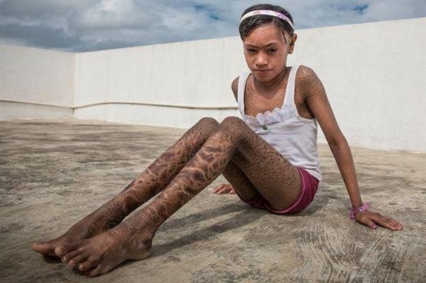 13岁女孩全身皮肤如蛇皮·此怪病竟没法治愈