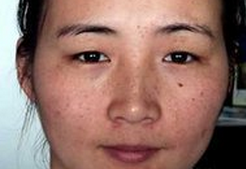 雀斑皮肤如何护理