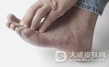患有脚气怎么办 怎么预防脚气