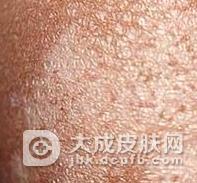 毛发苔藓应与哪些皮肤病鉴别