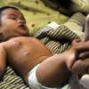 患有脓疱疮的处理措施是什么