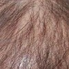 斑秃性脱发的引发原因