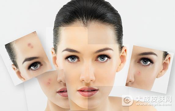 珍珠粉祛痘,让你的肌肤像珍珠一样光滑、亮白、光滑
