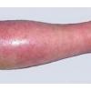 类丹毒的发病原因主要有哪些