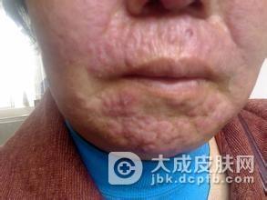面部播散性粟粒状狼疮皮肤病诊断治疗