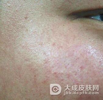 女性皮肤纤毛囊肿的治疗方法有哪些