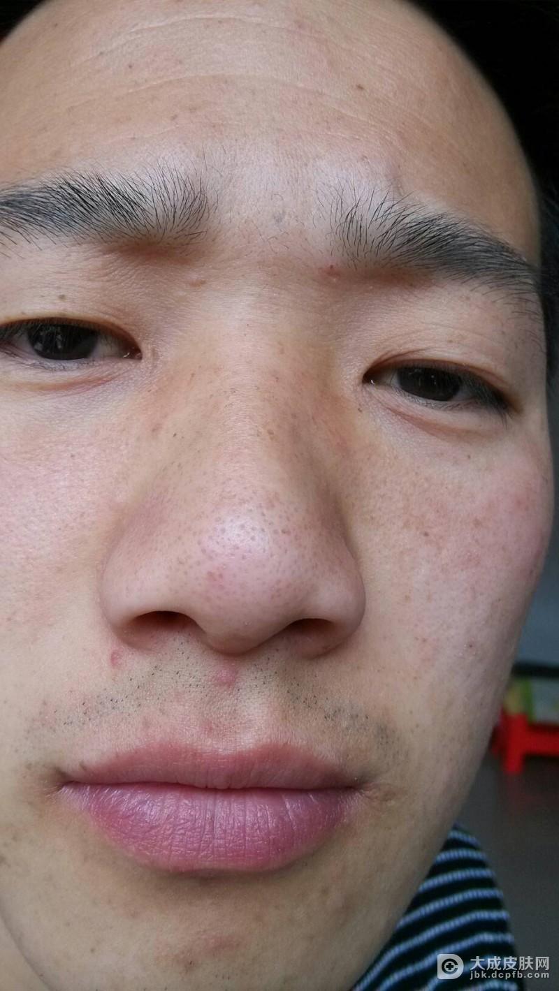 酒渣鼻应该如何进行保健
