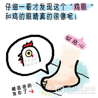 脚上长鸡眼怎么治 试试这两个方法