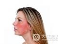 冬季敏感肌肤面部红血丝如何保养