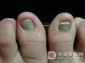 灰指甲的发病原因是什么 如何避免灰指甲传染呢
