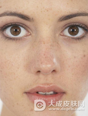 女孩脸上长斑怎么办 做好面部护理祛除斑点