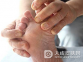 真菌性皮肤病怎么治疗 中医治疗偏方