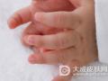 湖南省疾控中心提醒预防手足口病等传染病侵袭
