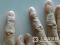 患了湿疹皮炎怎么办 湿疹皮炎的病理病因