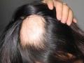 你还在纠结斑秃脱发有啥区别吗?