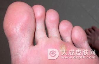 脚底有痘痘 小心是鸡眼出现