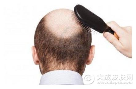秋季爱脱发,怎么预防脱发