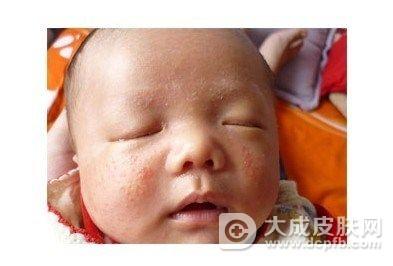 秋季儿童爱得湿疹,教你防治方法