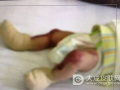 女婴罕见皮肤缺失 下肢双手肌肤暴露在外