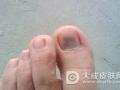 灰指甲有哪些病因
