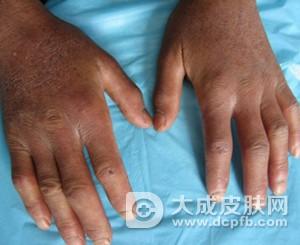 皮肤变硬或血管疾病 小心是硬皮病