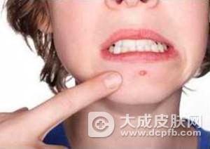 下巴长痘的原因有哪些
