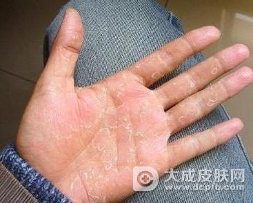冬季手脚脱皮 食疗方法帮助你