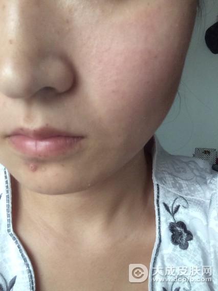 脸部皮肤过敏该怎么办