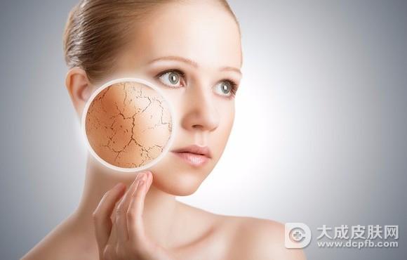 冬季皮肤干燥 吃什么食物能改善