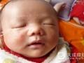 宝宝湿疹是怎么引起的