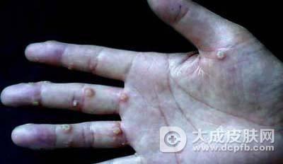 扁平疣有哪些症状表现