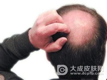 经常掉头发该怎么办