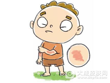 荨麻疹的症状表现