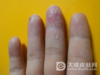 手癣有哪些症状表现