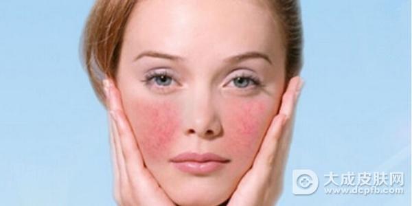 红血丝肌肤如何挑选护肤品