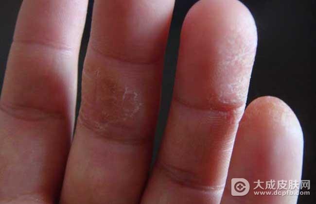 成人湿疹的发病原因