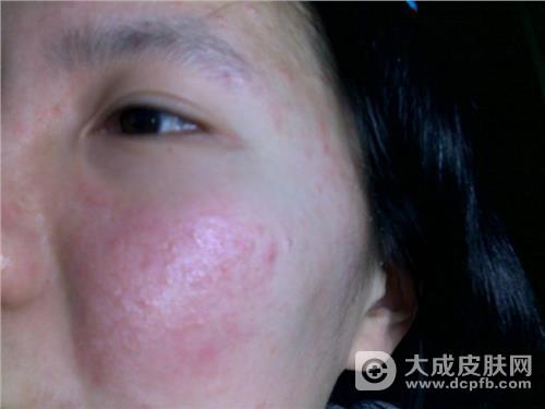 皮肤爱过敏 教你三招预防