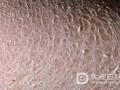 皮肤瘙痒可能是哪些病症
