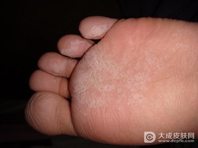 阴道炎竟和脚气有关