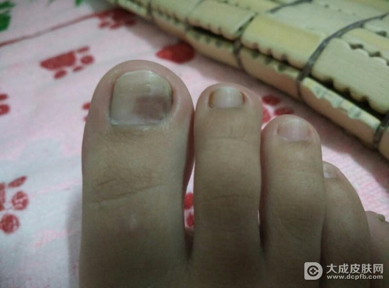 灰指甲该怎么护理