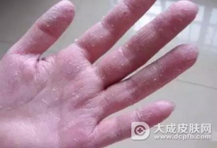 手脱皮该怎么办
