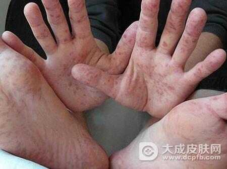 手足口病的护理指南