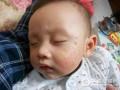 宝宝湿疹是哪些因素导致的