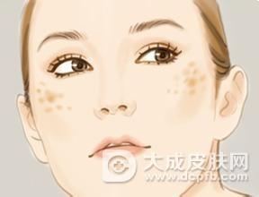改善晒斑的方法有哪些