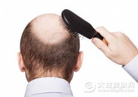 经常脱发的原因有哪些