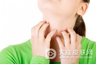 春季爱发皮炎 外出需注意