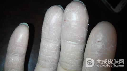 改善湿疹 教你四个偏方