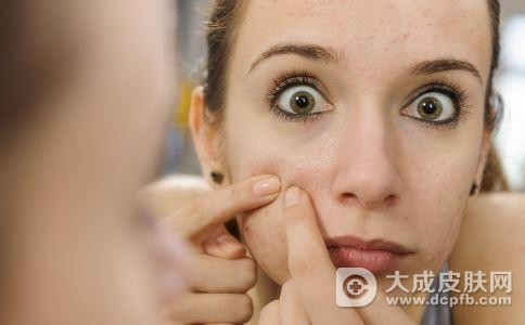 预防痤疮的方法有哪些