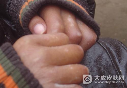 白癜风发病症状有哪些