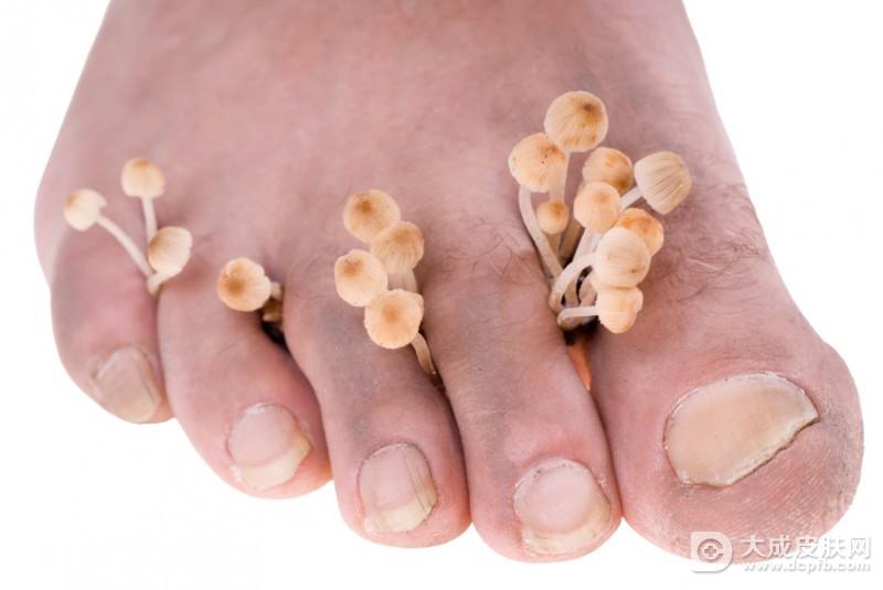夏季预防脚气的好方法